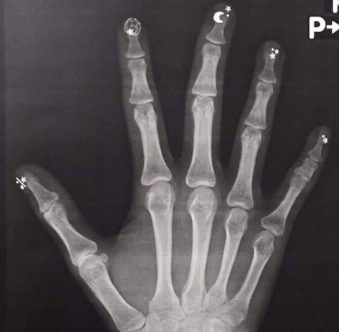 FB_IMG_1577626269631.jpg : 네일아트 후 X-ray 사진 찍으면 안되는이유...