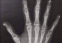 네일아트 후 X-ray 사진 찍으면 안되는이유...